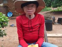 Villaggio isola di Ukerewe, crema protettiva per le persone albine (ph: © D. Penati – Mondointasca.it)