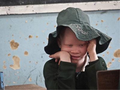 Tanzania Arusha, bimbo albino nella sua classe (ph: © D. Penati – Mondointasca.it)